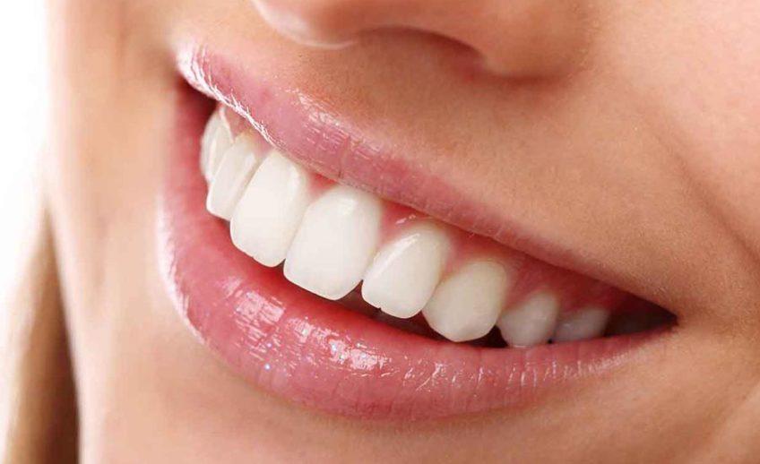 Dental Bonding in Matthews NC