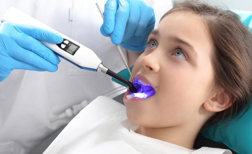 Dental Sealants in Matthews NC